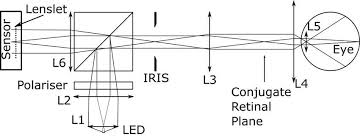 Fundus Chart Layout Of The Optics Of The Engineered Fundus Camera