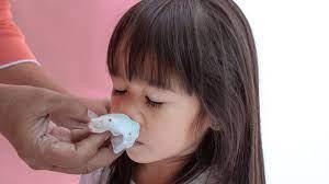 子供 寝 てる 時 鼻血