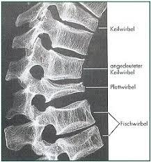 Osteopenie schmerzen