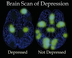 Image result for depressed brain