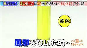 おしっこ が 黄色