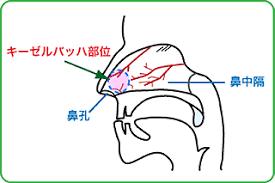 「鼻血」の画像検索結果