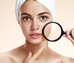 how to cover pimples without foundation