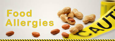 Keven Moore: Accommodating food allergies in the workplace — here ...