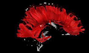 「脳梁」の画像検索結果
