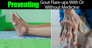 how long does gout flare up last