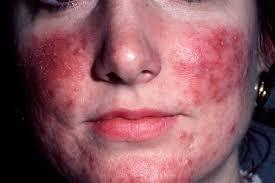 rosacea besmettelijk