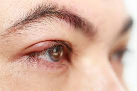 How to Get Rid of a Stye | Boise Lasik
