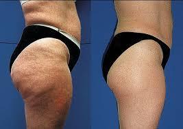 Resultado de imagem para reduce cellulite