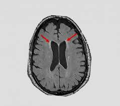 Intensive Blood Pressure Control May Slow Age Related Brain