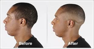This means that the hair around the nape of the neck and sides are completely shaved off, hence it's very apt name. Classic Bald Fade Wahlpro Com