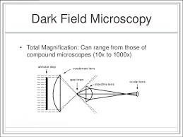 dark field microscopy microscopy