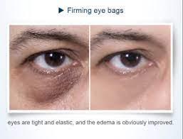 under eye cream remove dark circles