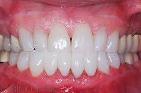 Image result for dental Triangles