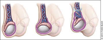testicular torsion. age distribution testicular torsion a