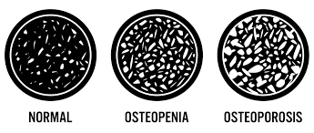 Osteoporosis 3 0 What Your T Score Means For Your Bone