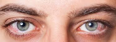 Pics Of Eyes Dry Eye