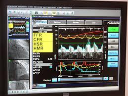Centricity Cardio Enterprise Enables Full Clinical Access