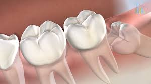 But there are some options you can try to get your dental procedure done for free. Wisdom Teeth Removal In Sunnyvale Ca Third Molars Extraction