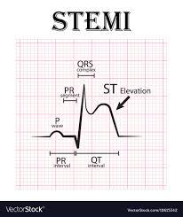 Ecg Of St Elevation Myocardial Infarction Stemi Vector Image