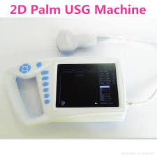 human palm 2d ultrasound scanner with built in battery 1