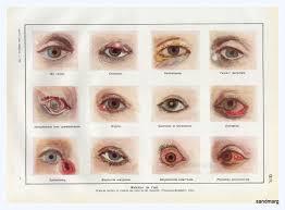 Eye Diseases Chart Sandmarg French Chart Of Eye Diseases 1940s