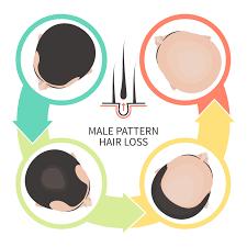 hair loss harvard health