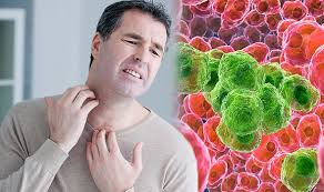 Blood cancer symptoms: Itchy skin could be a sign of this killer ...