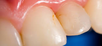 tooth discoloration what s behind