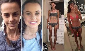 anorexics before and after. Blogger Documents Her Anorexia Recovery With Before And After Photos On Instagram Daily Mail Online In Anorexics