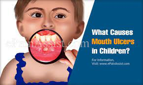 what causes mouth ulcers in children