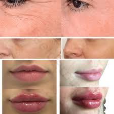 face injection serum lip filler dermal