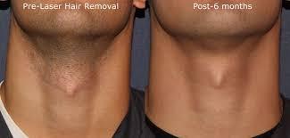 laser hair removal cal spa san