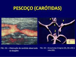 Doena das artrias cartidas: uma das principais causas