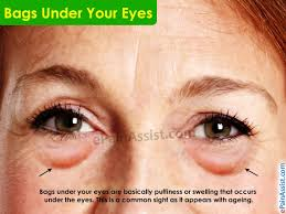 What Causes Bags Under Your Eyes and How To Get Rid of it?