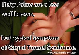 Are Itching Palms A Symptom of Carpal Tunnel Syndrome?