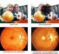 25 Best Ocular Histoplasmosis Images Diseases Of The Eye