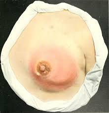 Mastitis in non breast feeding woman