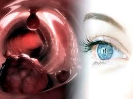 يخطف النظر.. تعرف على أعراض سرطان العين