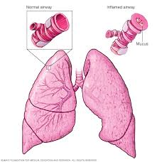 Asthma Symptoms And Causes Mayo Clinic