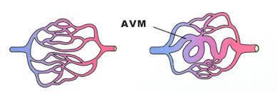 Image result for avm