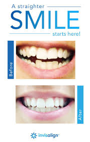 considering invisalign clear aligners but worried about the cost here s some good news the