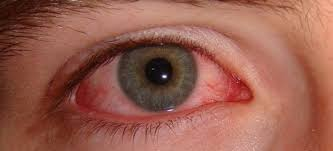 the most mon natural treatments for dry eye syndrome