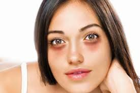 Image result for image of dark circles