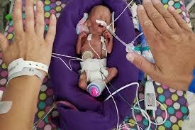 Fundraiser for Ivy Gardner by Paige May : Ellie Gardner 23 weeks preemie