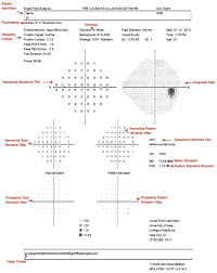 Visual Field Chart Interpretation Visual Field Testing From One Medical Student To Another