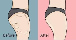 Afbeeldingsresultaat voor gezondheid lichaam cellulite