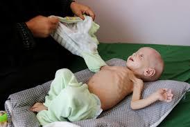 starving white child. Perfect White Children Are Starving In Yemen The White House Should Intervene   Washington Post Intended Starving Child T