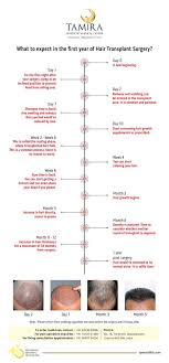Hair Transplant Timeline Inforgraphic From Day 0 To Day 365