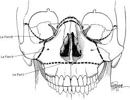 Le Fort Fracture Maxillofacial Injuries Clinical Gate